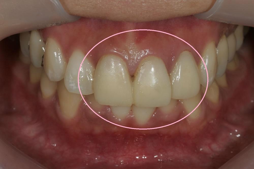 仮歯の精度向上
