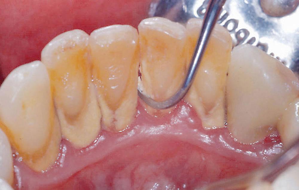 歯のクリーニング(進行が軽度の場合)