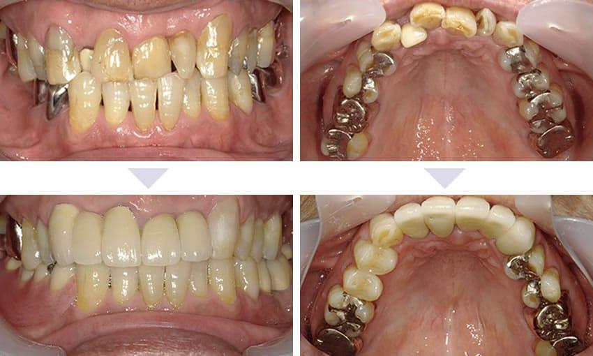審美歯科治療でこんなに綺麗に